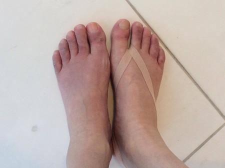 分かりづらいですが、本来は左足のようにどす黒いしもやけ足なのが、テーピングをしたと途端にみるみる色が変わっていったのです!
