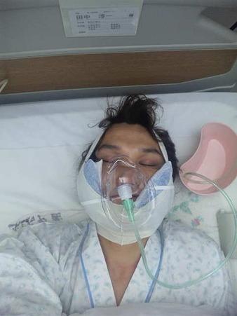 術後のタナジュン