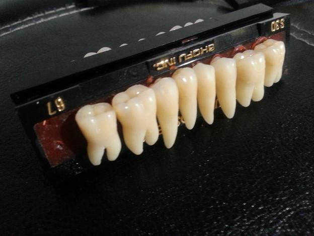 上顎臼歯6本